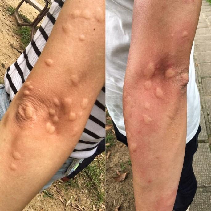 這極恐怖的蚊癱災情是我化妝師在香港郊區遇上,現在的蚊蟲除了有機會變種外,還因為對部分農藥殺蟲藥等有抗藥性。
